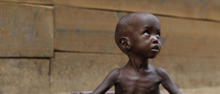 Article : Région du Kasaï en RDC, après la guerre, les enfants meurent de malnutrition